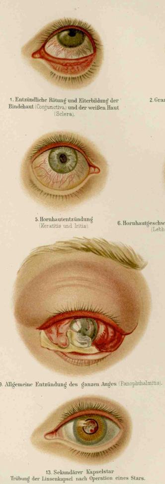 modul în care bolile oculare afectează vederea